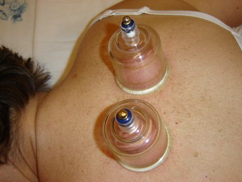 what is cupping? What is Cupping? cups upper back 480x360