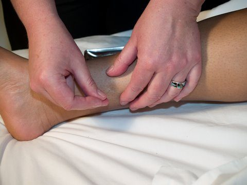 acupuncture is not painful Acupuncture Is Not Painful dreamstime 2733611 acsp6 480x360