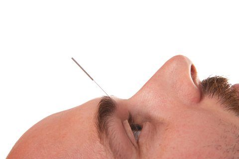 3 great reasons to get acupuncture now 3 Great Reasons To Get Acupuncture NOW dreamstime 3920882man yintang 480x319
