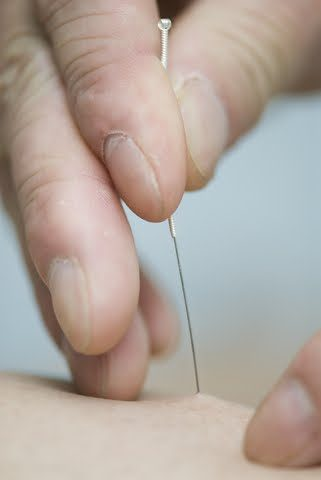 research shows acupuncture can reduce menstrual pain Research Shows Acupuncture Can Reduce Menstrual Pain dreamstime 6716527 321x480