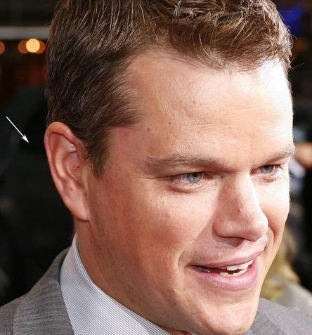 matt damon likes acupuncture Matt Damon Likes Acupuncture matt damon ear 444x477