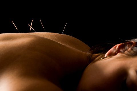 la times article: acupuncture works for back pain LA Times Article: Acupuncture Works For Back Pain dreamstime 5221550needles in back 480x319