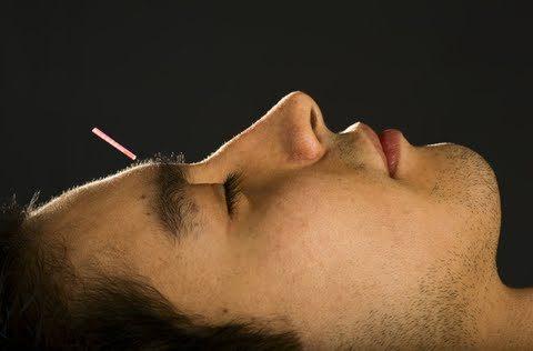 oscar winner sandra bullock makes acupuncture part of the set Oscar Winner Sandra Bullock Makes Acupuncture Part of the Set dreamstime 7068892 480x316