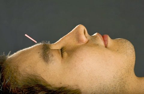 dr. oz is a big fan of acupuncture! Dr. Oz Is A BIG Fan Of Acupuncture! dreamstime 7068892 480x316